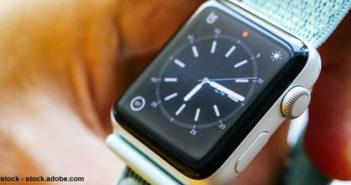 Envoyer le cadran de son Apple Watch sur une autre montre